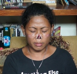 VSee covers case of woman with nose cut off