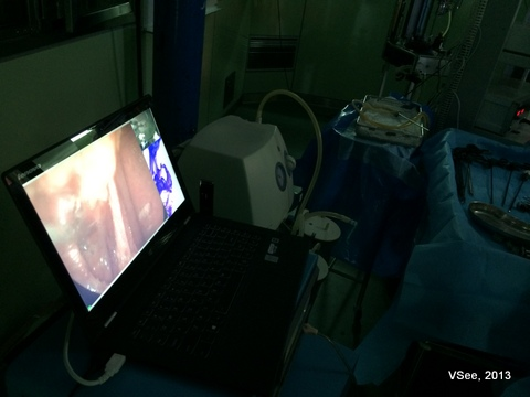 laparoscopic surgery on VSee